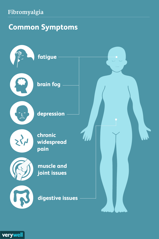 Qatt smajt dwar il-fibromyalgia?